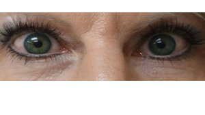 Manhattan BLEPHAROPLASTY after 4